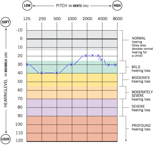 Example tone audiogram with hearing loss potentially caused by otosclerosis