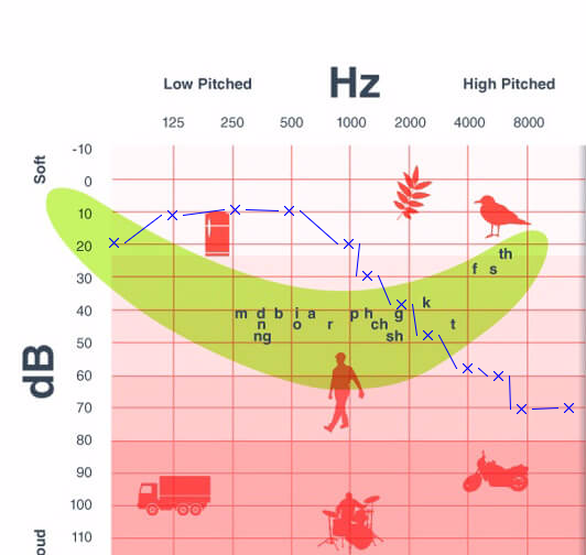 Tone audiogram with frequency annotation
